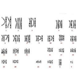 染色体核型配对分析